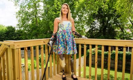 Aimee Copeland –  Quadruple Amputee – Motivational Speaker – Foundation Creator – Disabilities Social Worker