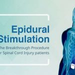 Epidural Stimulation – The Breakthrough Procedure of Spinal Cord Injury Patients